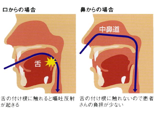 嘔吐反射が起きにくい経鼻内視鏡